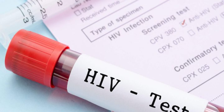Iowa HIV plan could help rural areas